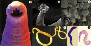 Paraziti intestinali - Protocol deparazitare - Produse Naturiste Provita