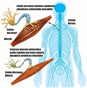 Protocol scleroza laterala amiotrofica - Tratament scleroza laterala amiotrofica